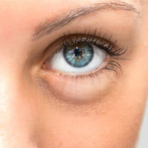 Bag_under_eyes